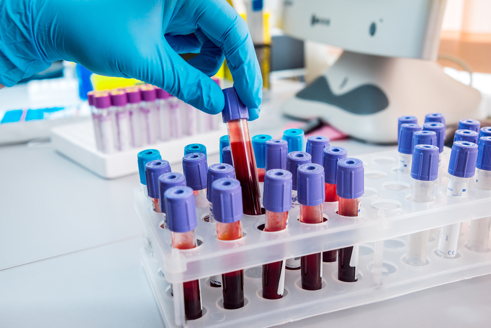 W jaki sposób należy transportować krew?