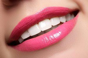 Palenie papierosów a wybielanie zębów